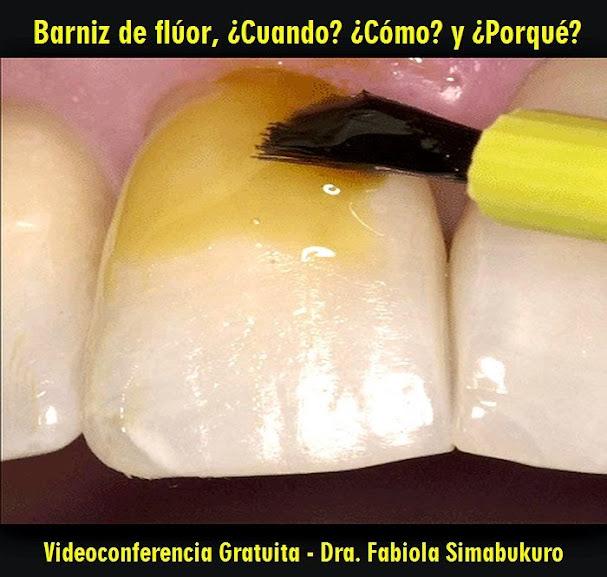 barniz-fluorado