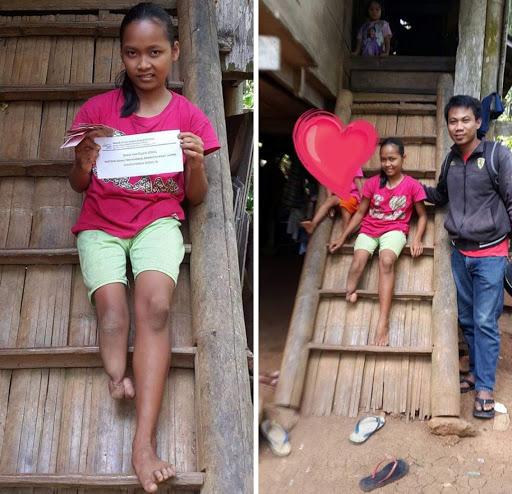 Enam Tahun, Gadis Asal Rembon Ini Berjalan dengan Satu Kaki ke Sekolah, PKH Berikan Bantuan
