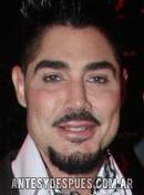 Ricardo Fort, 2010