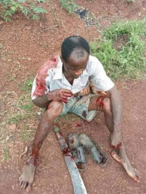 Fulani Herdsmen Attack Farmer In Enugu, Chop Off His Fingers (Graphic Photos)