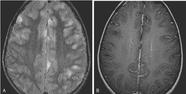 abnormal mri brain meningitis