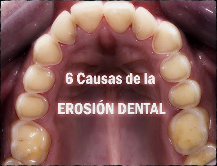 erosion-dental