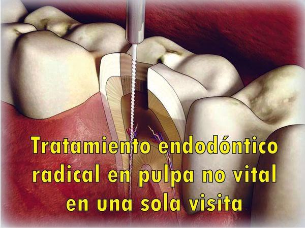 endodoncia-pulpa-no-vital