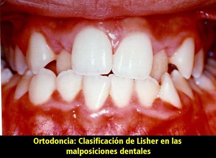 clasificacion-lisher