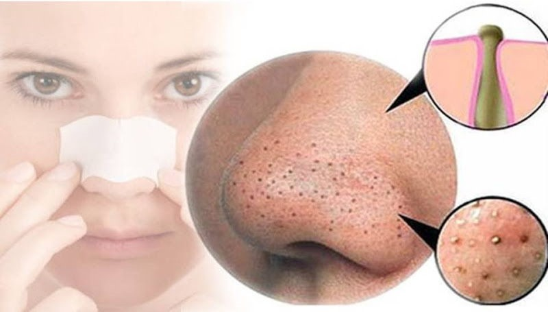 how to remove blackheads at home[