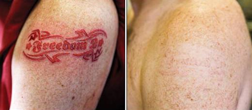Лазерное удаление татуировок цена запо Диспорт Ярославская улица Чебоксары