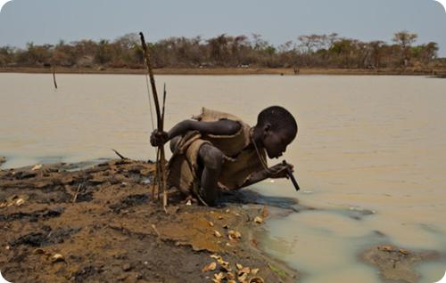 fotos  de la lombriz de Guinea o dracunculosis