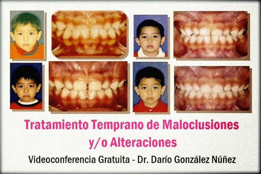 maloclusiones-ortodoncia
