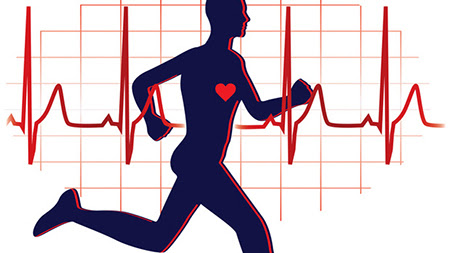 sport infarto