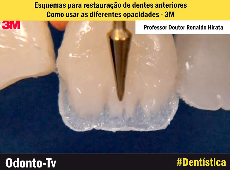restauracao-dentes-anteriores