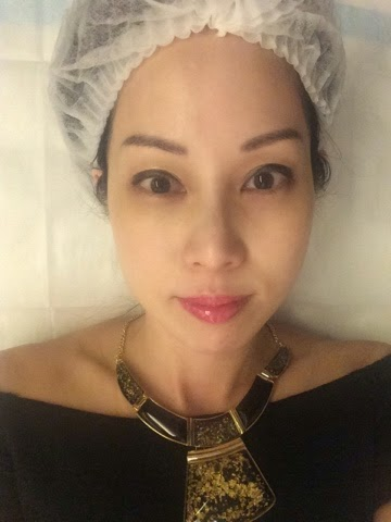 Excited about the Sculptra treatment