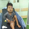 Mohon Doa Untuk Kesembuhan Adek Ini Sahabat, Bocah Umur 5 Terkena Kanker Otot dan Terbaring Di Rumah Sakit. Semoga Cepat Sembuh Aminn