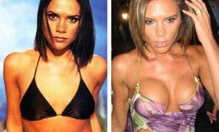mamoplastia antes e depois