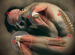 Remediu pentru durerile de reumatism