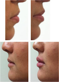lip augmentation by fillers