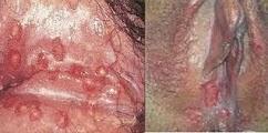 Obat Lecet dan Sakit Ngilu Pada Kemaluan Wanita