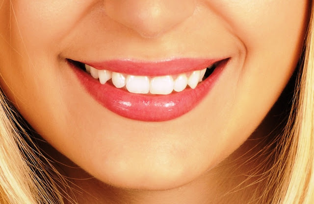 Tot ce trebuie să știi despre fațetele dentare
