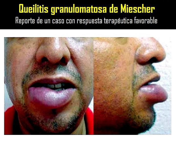 queilitis-granulomatosa