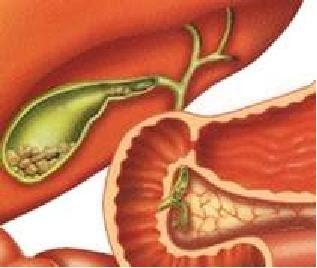 soi-cholesterol