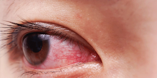 These are the causes of red eyes