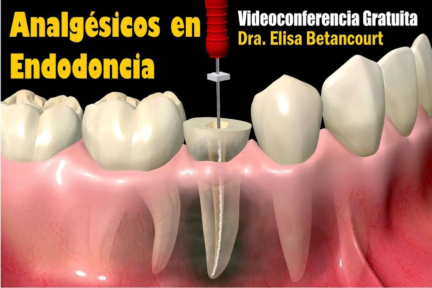 analgesicos-endodoncia