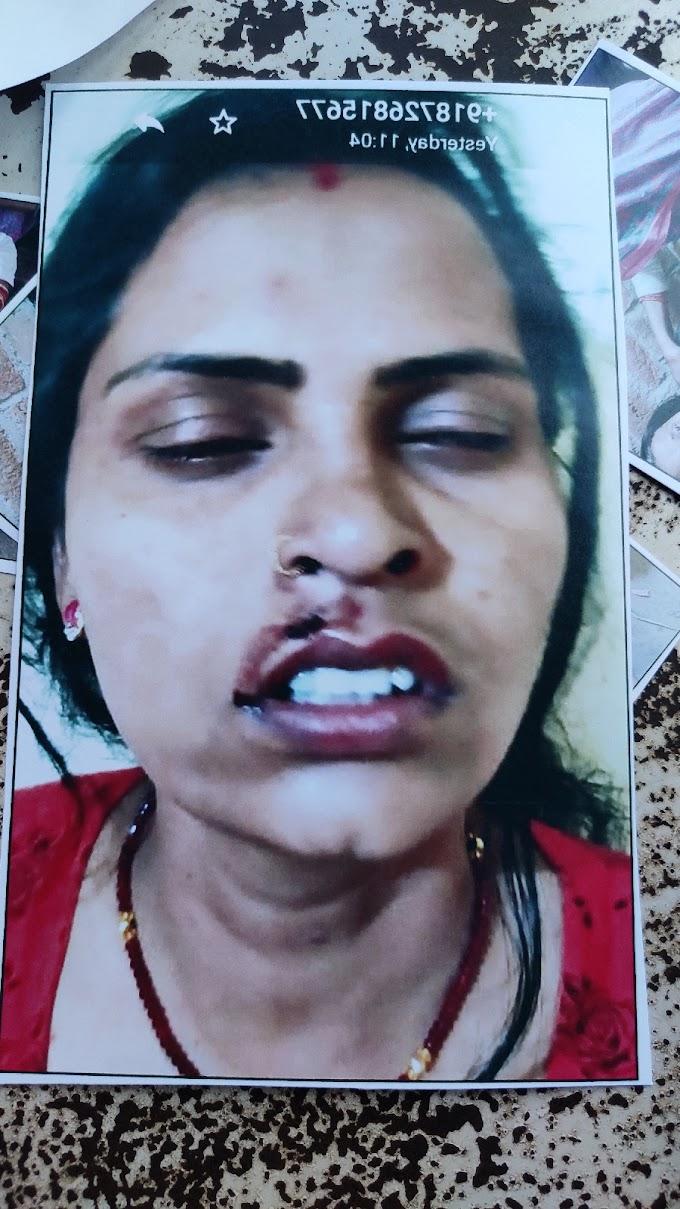 पति ,सास और बुआ के द्वारा महिला के साथ की गई मारपीट और रुपयों की मांग, पीड़ित ने लगाई समथर पुलिस से न्याय की गुहार