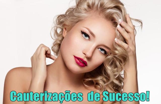 5 Receitas de Cauterização que fazem sucesso