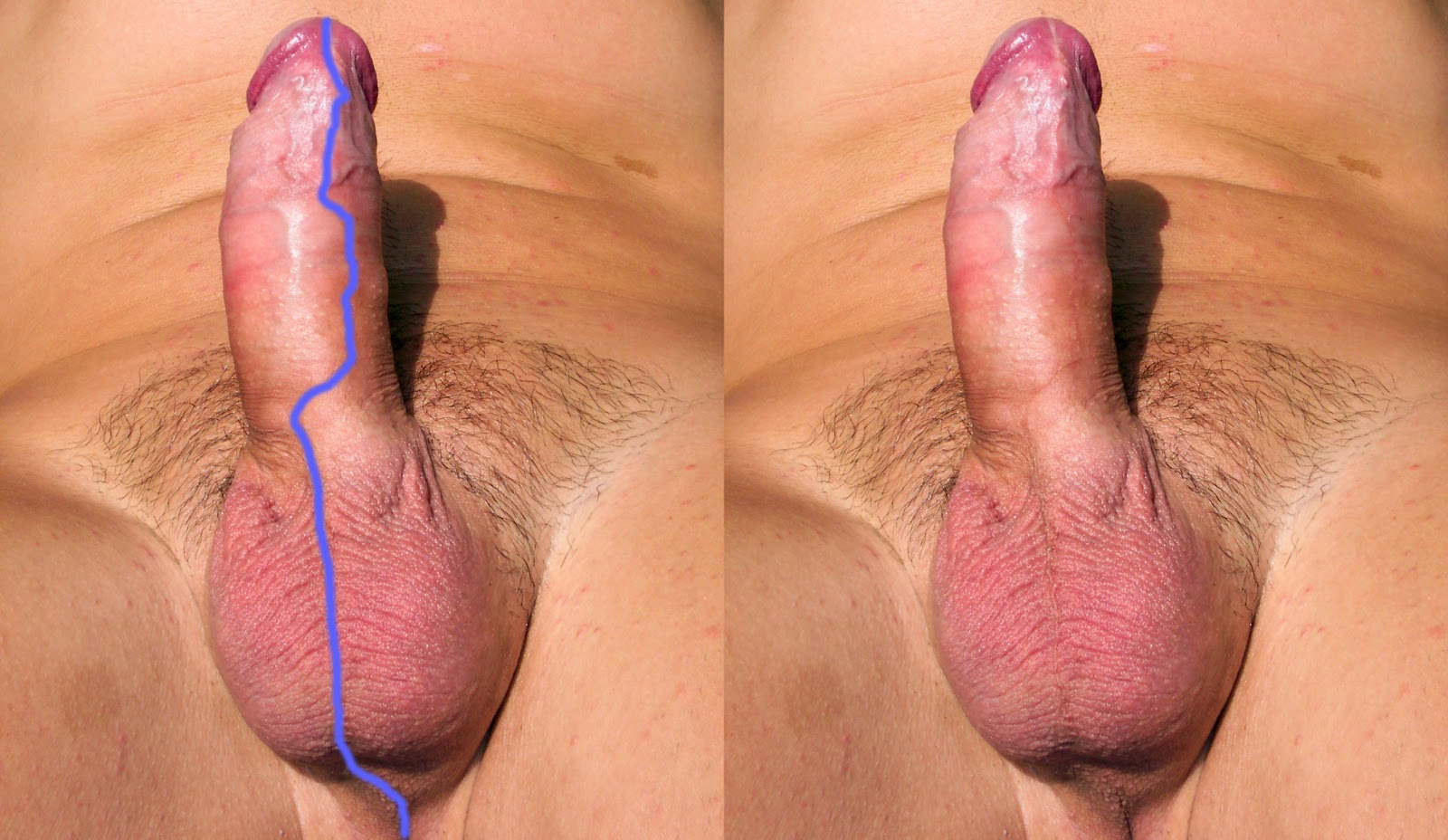 boobs-and-uncircumcised-penis-anal-sex-and
