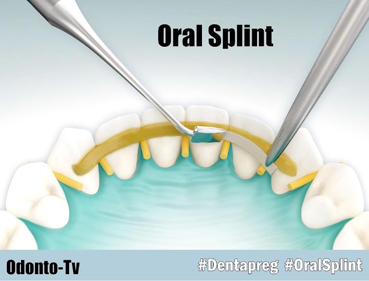 dentapreg-oral-splint