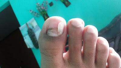 Akibat tidak memakai sepatu futsal. Kuku kaki lepas ngeri.