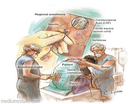 anestesi-regional-subarachnoid-epidural