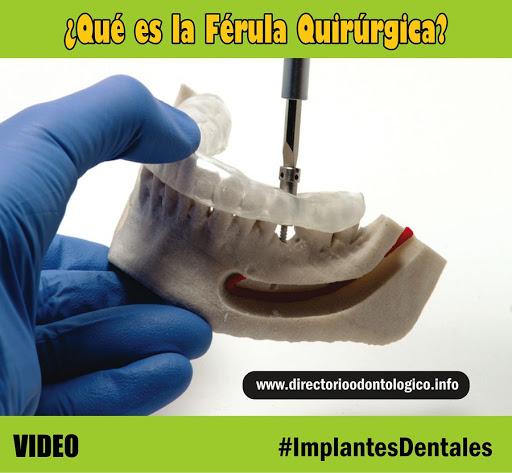 ferula-quirurgica