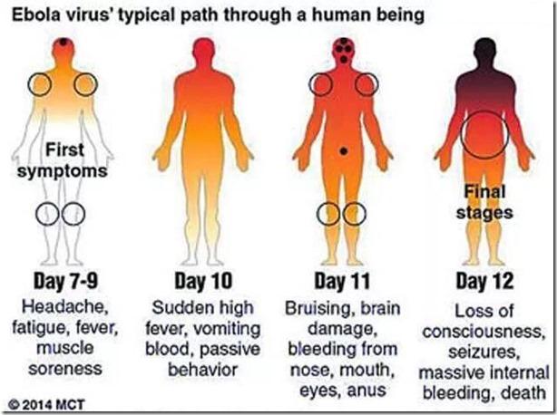 ebola virus appsc