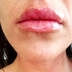 Ilana Botox and Beauty Boutiques's profile photo