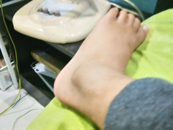 Anak patah kaki