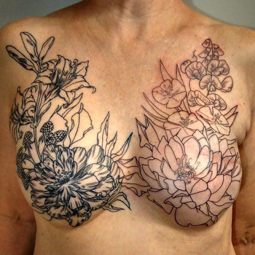 Cicatrizes de mastectomia ocultas com tatuagem