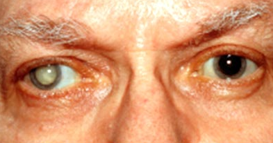 Obat Mata Katarak di Apotik