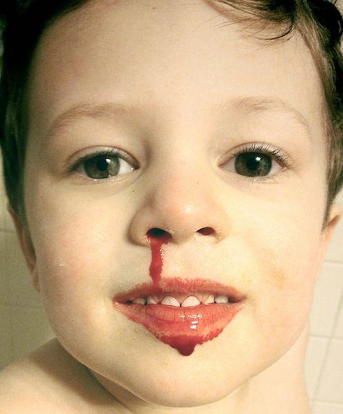 नाक के रोग भगाने के १२ घरेलु उपाय