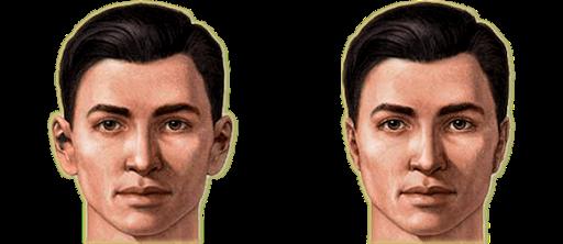 Résultat otoplastie oreilles décollées avant après
