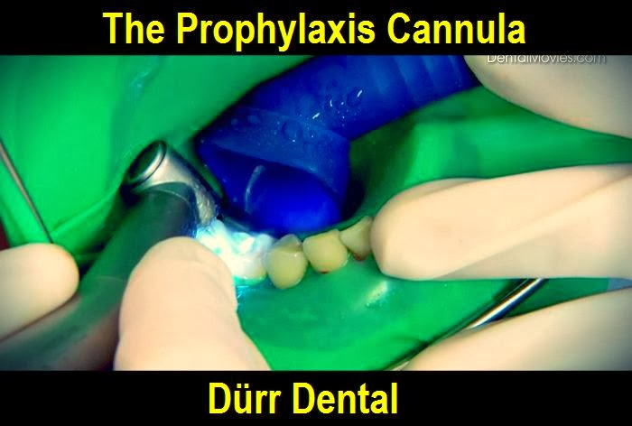 prophylaxis-cannula