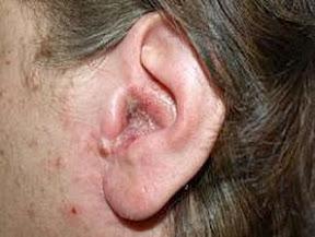 Obat Sakit Telinga