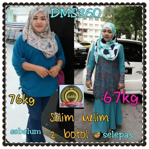 Image result for testimoni miss slim dms