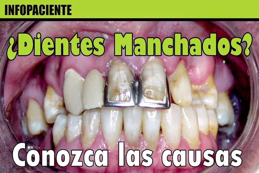 dientes-manchados