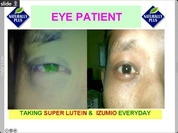 eye%252520patient Testimonial Naturally Plus