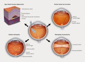 Obat Herbal Mata Mirtoplus Untuk Degenerasi Makula