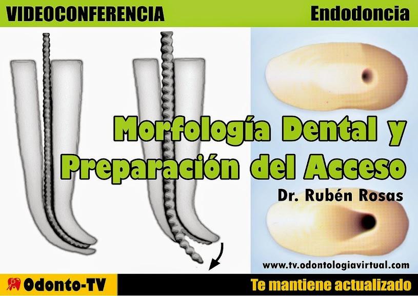 conductos-endodoncia