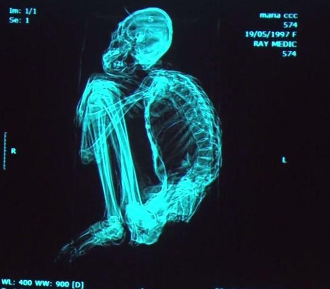 múmias extraterrestres encontradas no Peru são REAIS 02