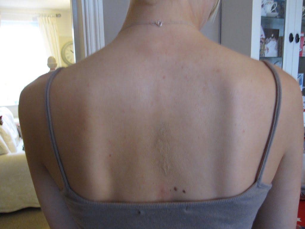 KH Tattooafter  (2)