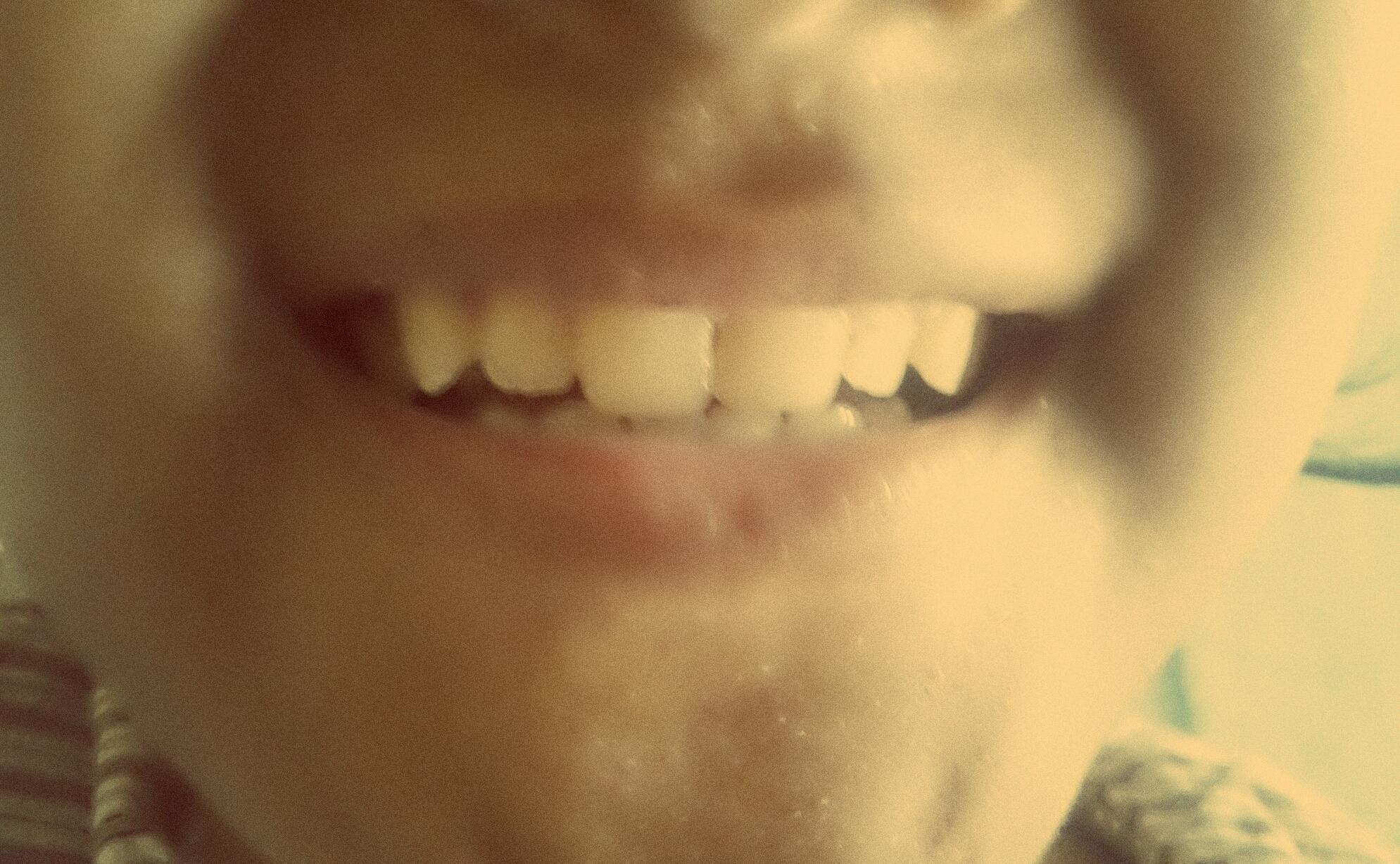 Inilah Cara Ampuh Memutihkan Gigi Secara Alami Blog Tips N Trik