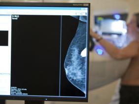 Découverte de la presque totalité des anomalies génétiques à l'origine des cancers du sein